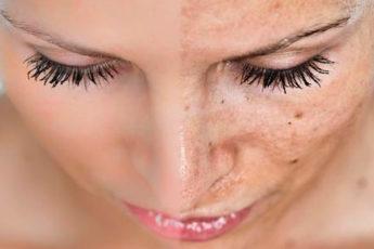 Пигментные пятна на лице. Как от них легко избавиться